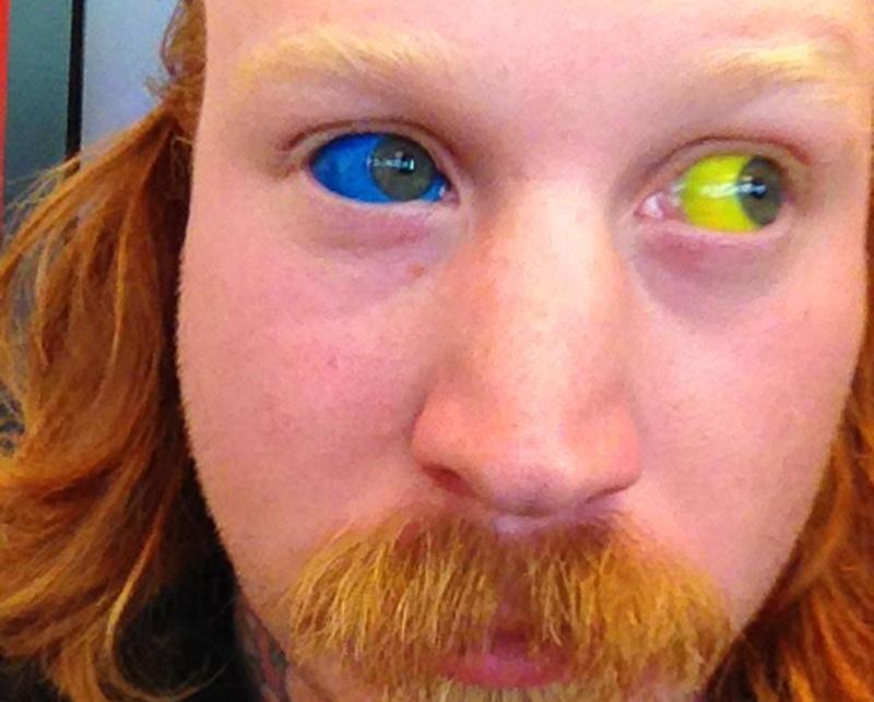 tetovanie oka - rôzne farby očí