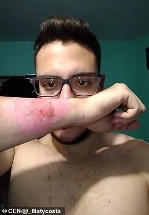 Mladík si tetovanie odstránil strúhadlom na syr