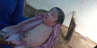 Dievčatko sa narodilo bez končatín